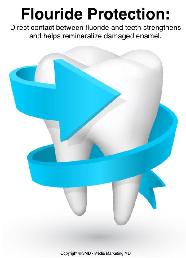 Image Gallery Dental Fluoride